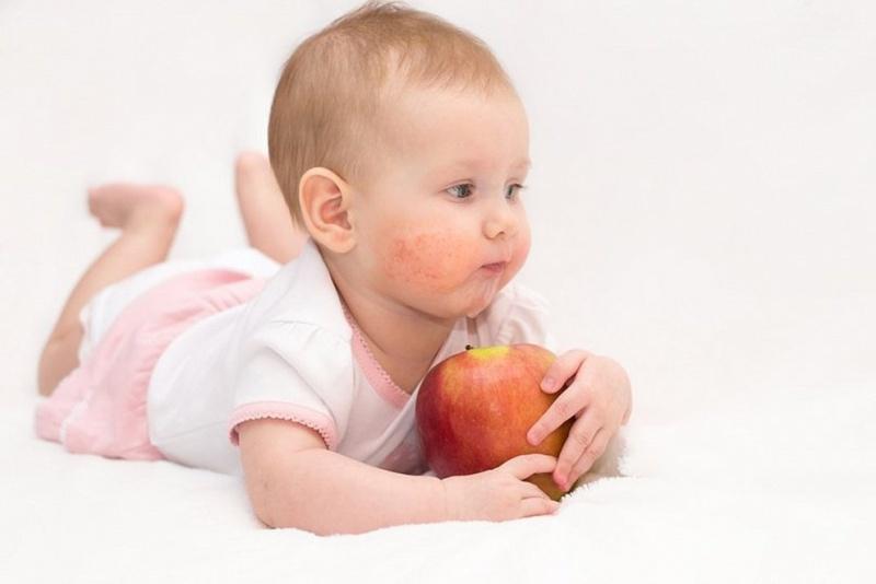 Варианты аллергии у детей, как развивается аллергия?